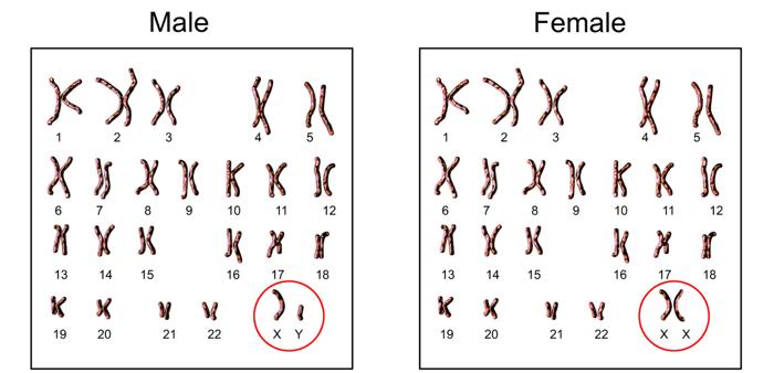 Fabry Disease (3)-1-1